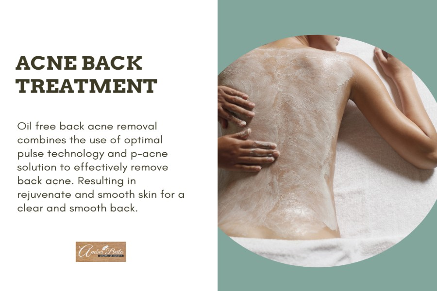 OPT Back Acne Treatment by Amber Beila on Daily Vanity Salon Finder