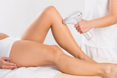 SHR Half Leg Permanent Hair Removal