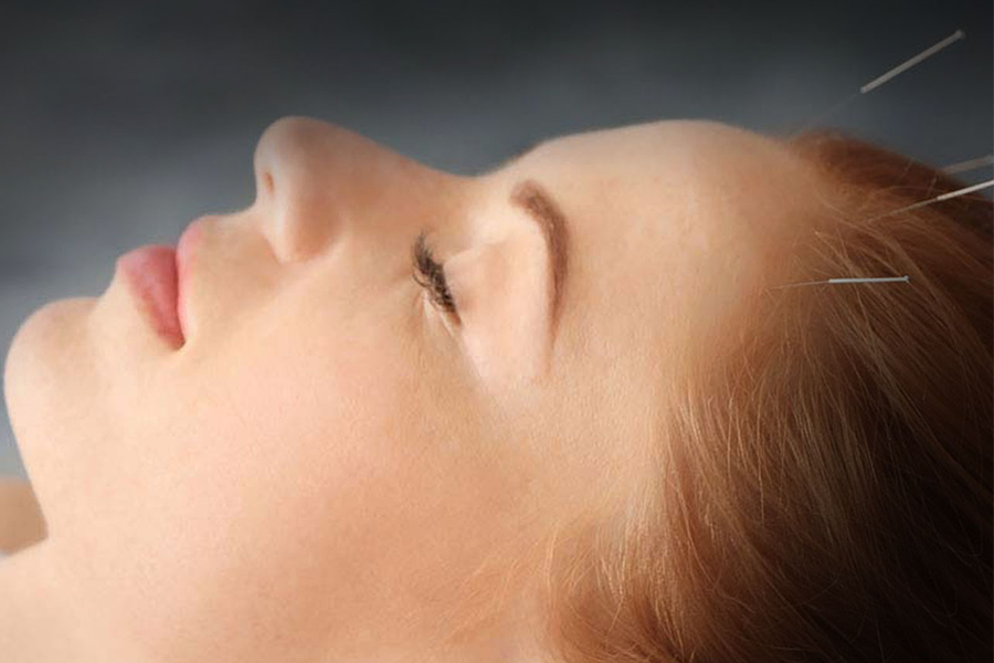 Acupuncture - Anti Hair Loss (Inclusive of Consultation) by PULSE TCM Clinic on Daily Vanity Salon Finder