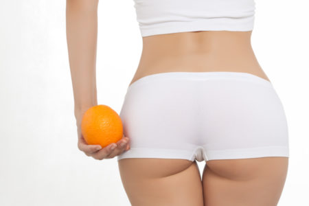 Sensedebelle Cellutec Cellulite Treatment - Spot reduction