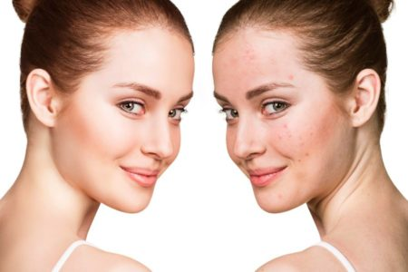 Acne Facial Treatment - Pimples and Breakouts