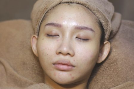 Acne Purifying Balance Facial
