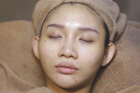 Acne Purifying Balance Facial