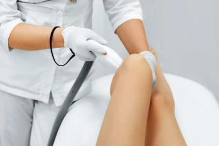 Lower leg SHR (Super Hair Removal)