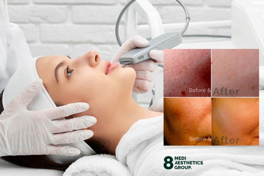 No.1 Deep Cleansing Nano Pore Face Therapy by 8 Medi Aesthetics on Daily Vanity Salon Finder