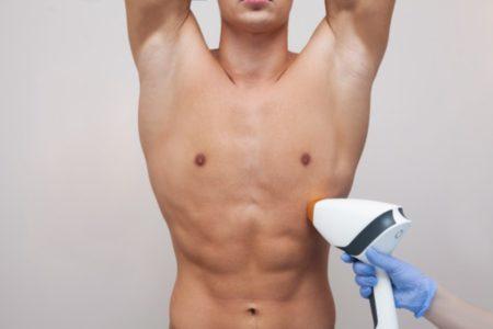 Boyzilian + Underarm Super Hair Removal (SHR) for Men