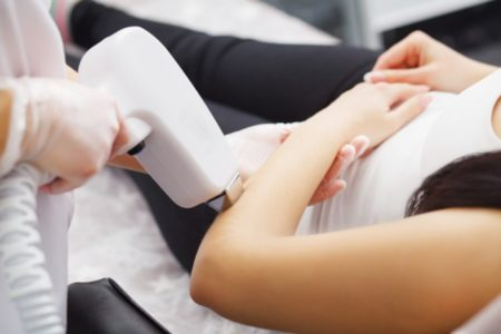 Half Arm (Upper or Lower) Laser Hair Removal for Ladies