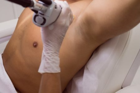 Underarm Laser Hair Removal for Men