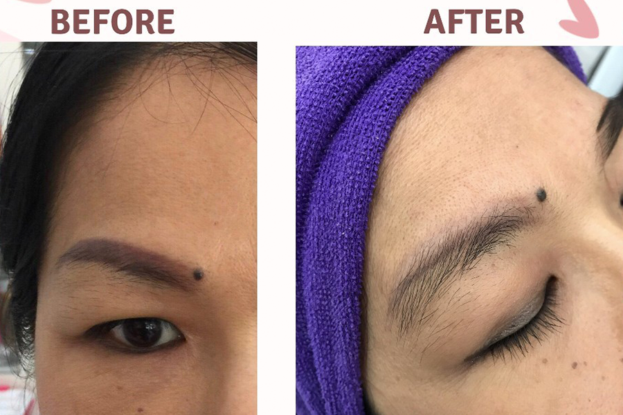 Non-Laser Tattoo Removal - 2 Sessions by Beauty Recipe on Daily Vanity Salon Finder