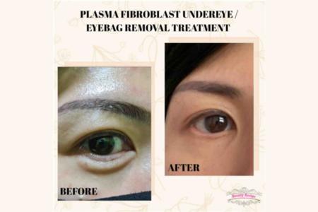 Non-Surgical Blepharoplasty (Lower Eyelid) - 1 Session