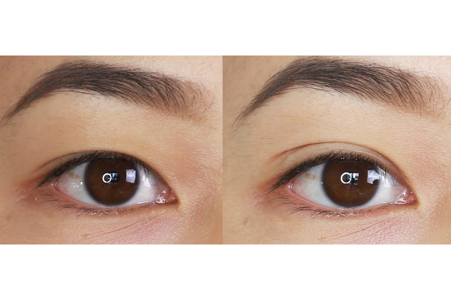 Non-Surgical Blepharoplasty (Upper Eyelid) - 3 Sessions by Beauty Recipe on Daily Vanity Salon Finder