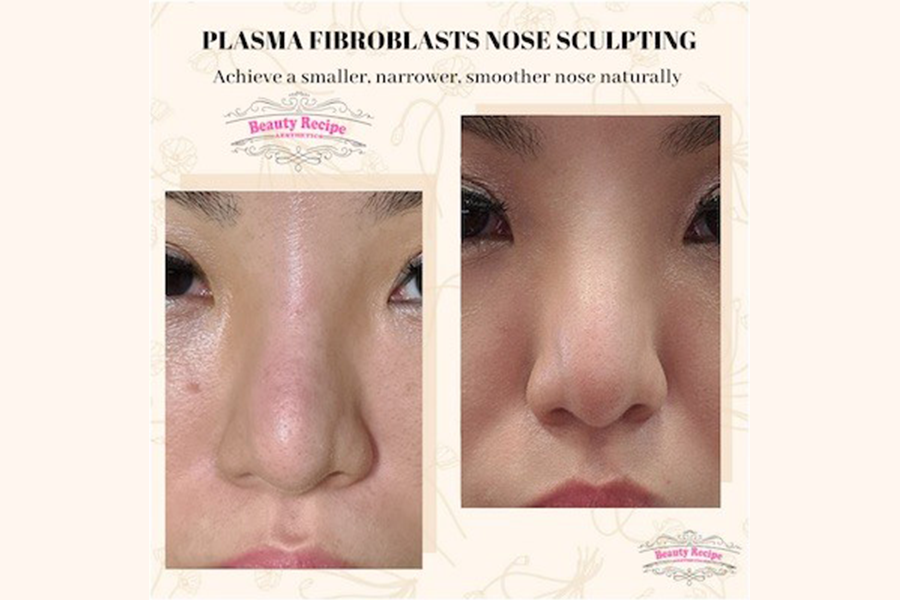 Nose Sculpting - 1 Session by Beauty Recipe on Daily Vanity Salon Finder