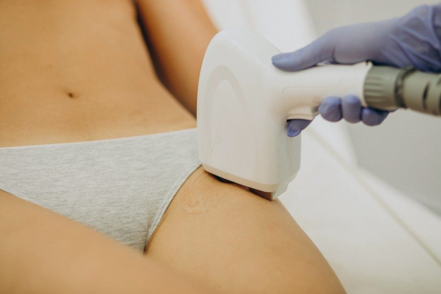 Super Hair Removal (SHR) for Brazilian Area - 2 sessions by Ceramique Aesthetics on Daily Vanity Salon Finder